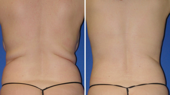 ZERONA® Lipo-Laser patient after six sessions: © 2010 Erchonia Medical