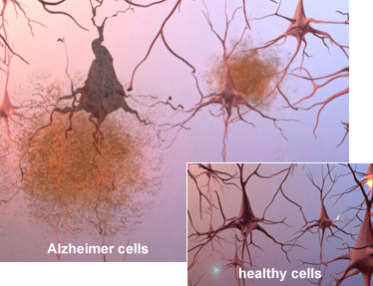 Amyloid beta protein form plaques in the brain causing Alzheimer's disease: image via alz.org
