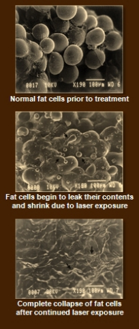 How fat is broken down with the Zerona LipoLaser: © 2010 Erchonia Medical