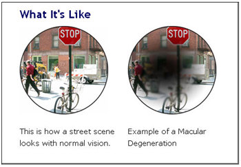 Age-related macular degeneration: image via lighthouse.org