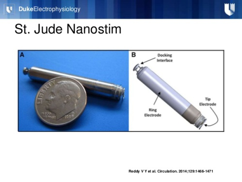 St. Jude's Nanostim Leadless Pacemaker: Source: SlideShare