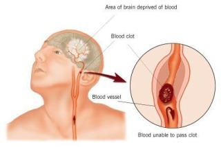 Blood clots cause TIA and Stroke: image via Isen.Blog