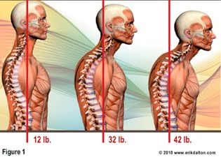 Forward Head Posture (FHP) or 'text neck': image via Marin Spine and Wellness Center