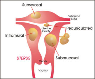 Uterus with fibroids inside and out: image via us.insightec.com