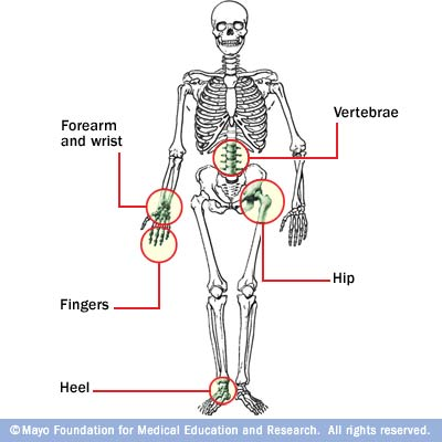 Areas typically affected by loss of bone as we age.: ©Mayo Foundation for Medical Education & Research