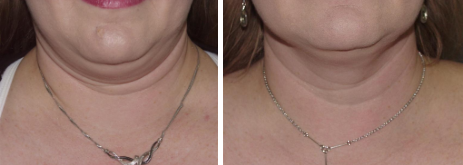 Before & After Zerona Photo, patient of Dr. Daniel Rousso in Alabama: © Daniel E Rousso