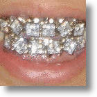 Blinding Bling - The Hottest Grillz Money Can Buy